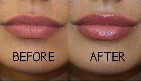 Vollere Lippen Zonder Injecties Beautystuff